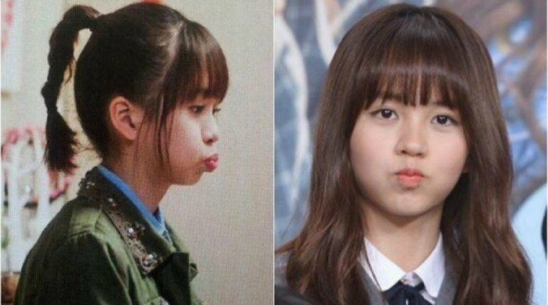 Kim So Hyun's Adorable Chubby Cheeks – CastKo